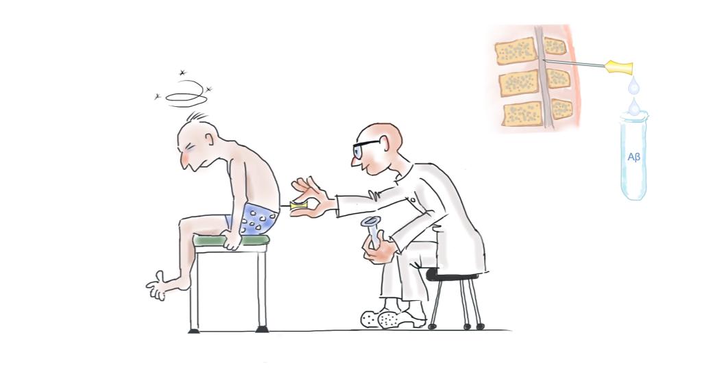 drawing of cerebrospinal fluid examination